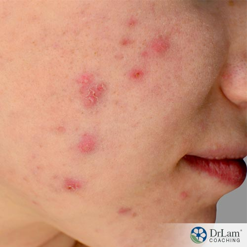 Acne and natural acne solutions