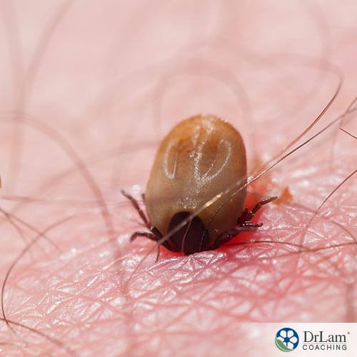 Your Guide to Natural Lyme Disease Cures – Part 2