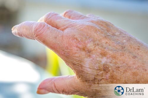 A hand with aged skin that can benefit from colostrum