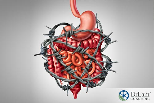 Managing IBS is like barbed wire around GI system