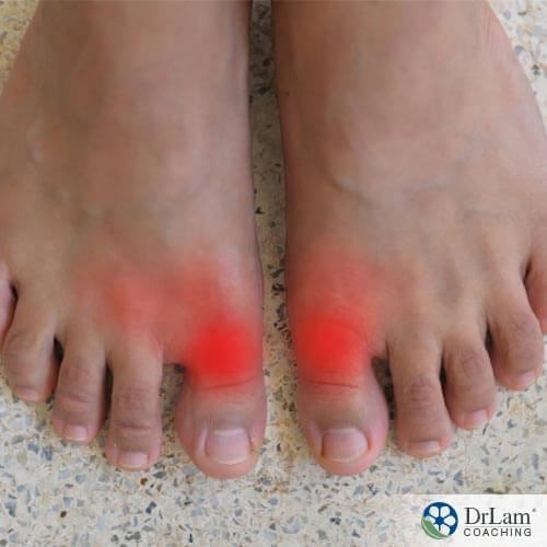 Different joints affected by gout