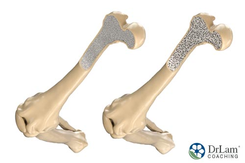 Two brittle bones needing benefits of magnesium to strengthen bone