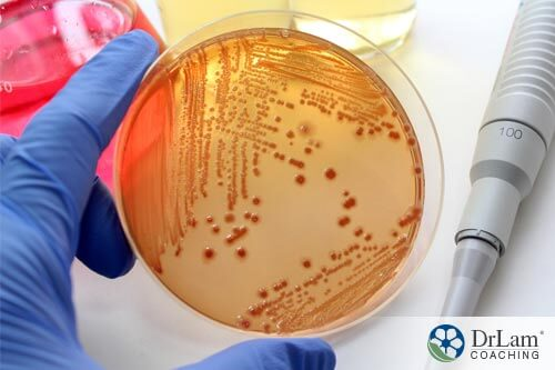 Petri dish of bacteria from tainted meat being held by scientist hand