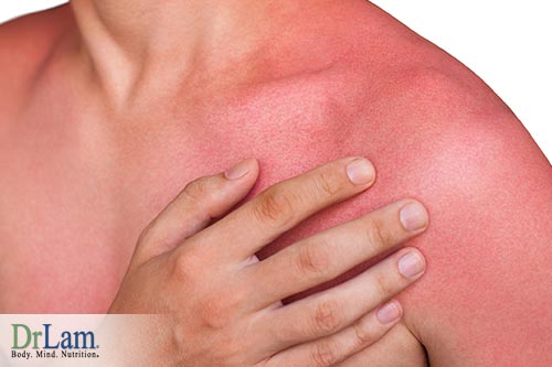 Not only is consuming coconut oil good for you, applying it on your sunburn can help as well.