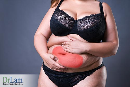 Adrenal hyperplasia and PCOS