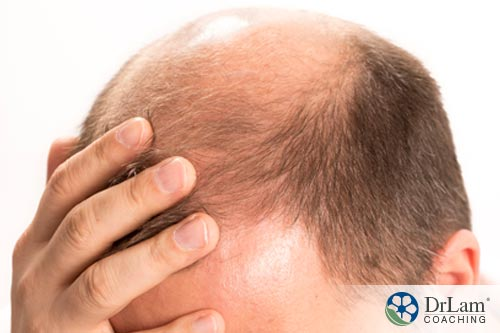 Premature balding is a symptom related to testosterone concerns
