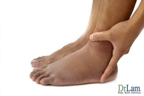 About hormonal imbalance and ankle swelling