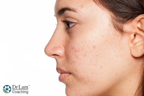 Acne, especially in females, is one of the typical symptoms of adrenal hyperplasia