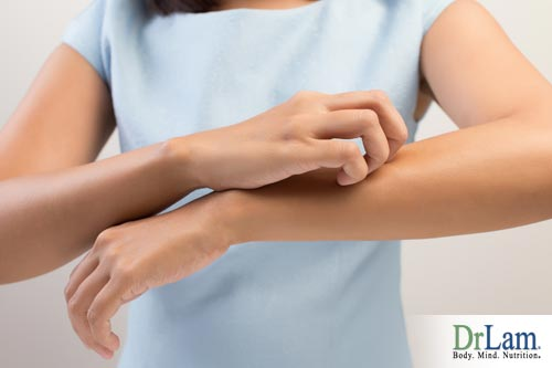 Hypersensitivity symptoms can include itchy skin