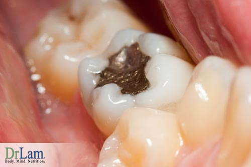 Dental health issues and mercury fillings