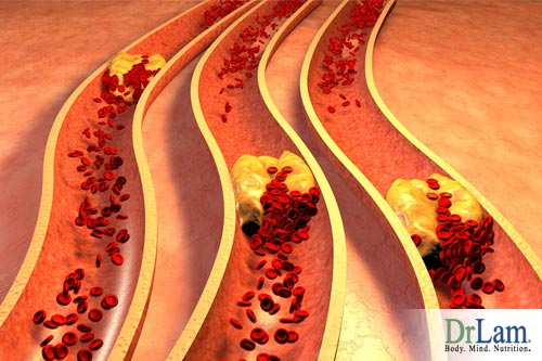 Can heart disease be reversed? Start by reducing atherosclerosis risk.