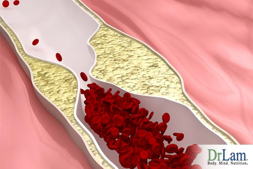 Sugar and aging: Atherosclerosis from sugar not dietary cholesterol