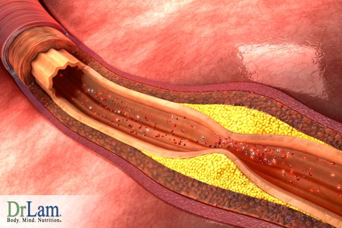 Atherosclerosis treatment and vessel blockage