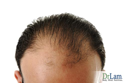 Depending on if your baldness is hormone related, you may be able to change its progression when asking what to take for fatigue