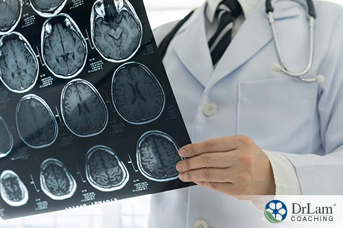 An image of a doctor looking over image films of a brain
