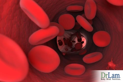 Excess iron may damage important blood vessels