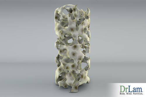 Osteoporosis affects bone density, can strontium for osteoporosis be the key