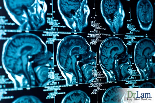 Brain Imaging and Conventional Medicine