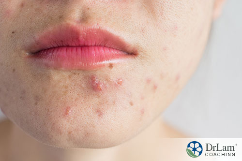 An image of a woman's chin acne