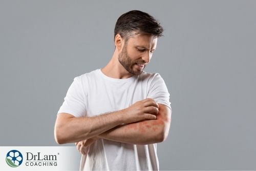An image of a man with red blotches on his arm