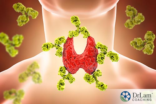 An image of a thyroid