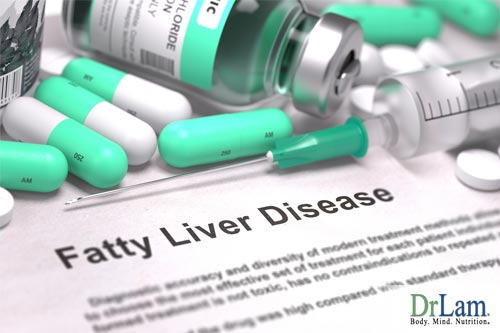 Is fatty liver among the list of what causes fatigue?