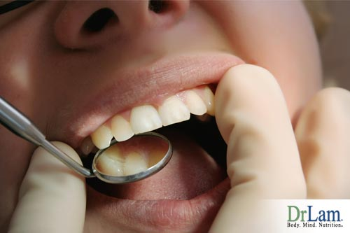 Infectious heart disease can be caused by gingivitis.