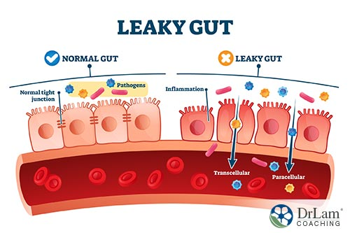 An image of a diagram showing the difference between a leaky gut vs normal gut