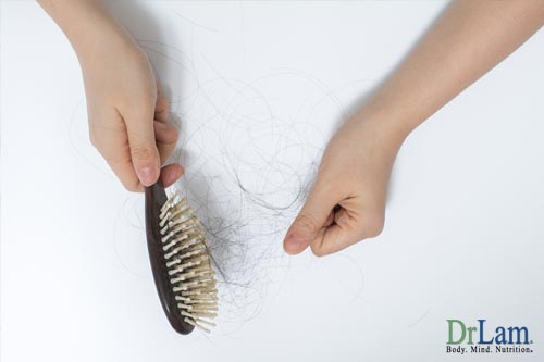 Hair loss and inositol for PCOS
