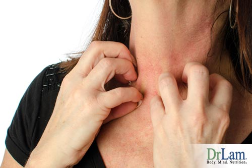 How to relieve stress: Why do I break out in rashes?