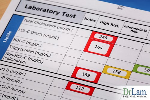 Cholesterol facts and laboratory tests