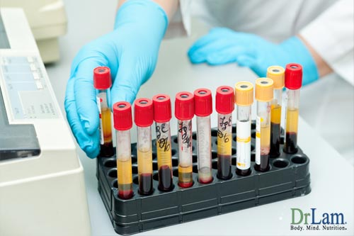 Laboratory testing is common when diagnosing Adrenal Fatigue