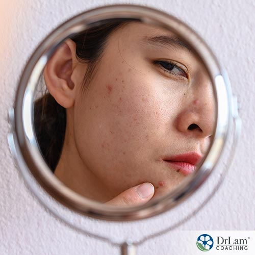 An image of a woman looking in a mirror at the acne on her face