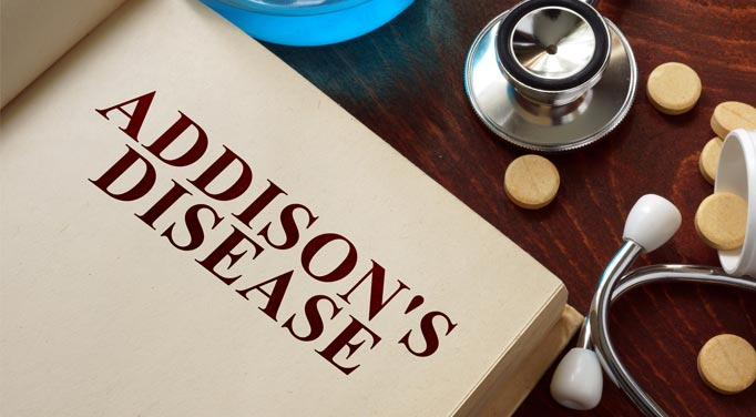 Addison's Disease and Adrenal Insufficiency Symptoms