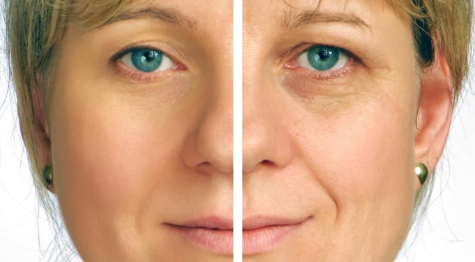 Aging in the face