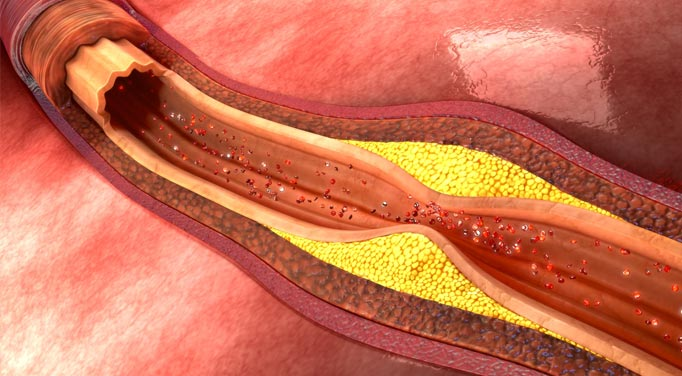 Atherosclerosis treatment