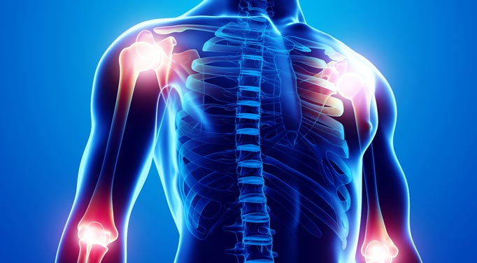 A graphic of pain throughout the body highlighting fibromyalgia is more generalized than chronic myofascial pain syndrome