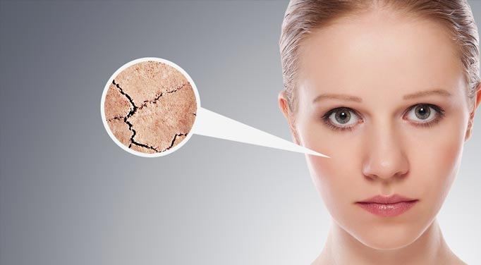 A young woman looking unhappy, a zoom in bubble to the skin on her face reveals it is dry and cracking, which may be helped by healing adrenal fatigue