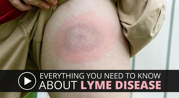Systemic infection symptoms