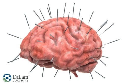 An image of a brain with acupunctures