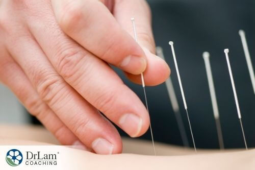 An image of acupuncture being performed