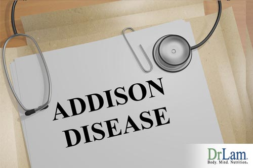 When figuring out how to treat adrenal fatigue, it is important to rule out similar conditions like Addison's Disease