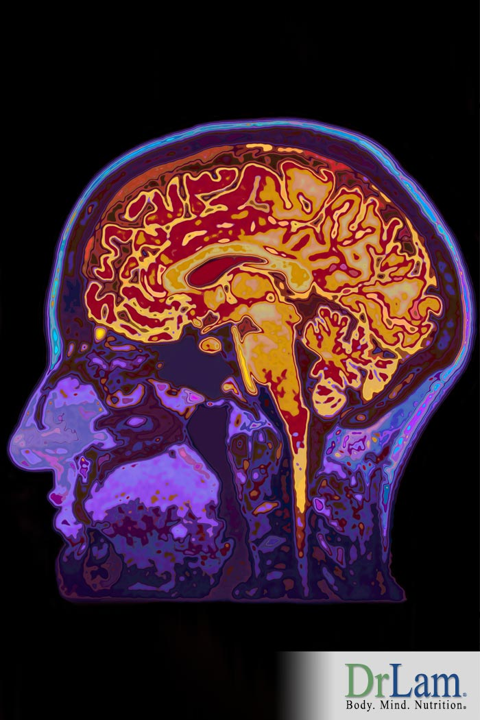 Stanford Study Shows Link Between Fatigue and Abnormal Brain MRI Images