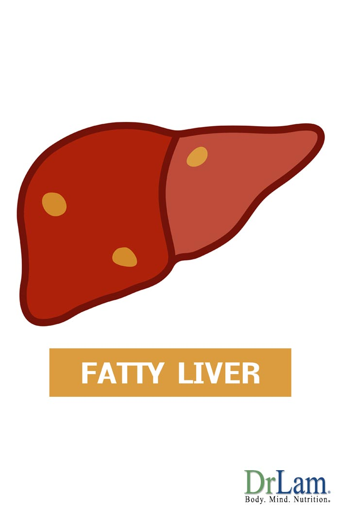 I have Adenomyosis, Mercury Fillings, Candida, Fatigue, Poor Memory, Fatty Liver and Thyroid issues.