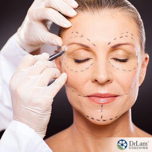 An image of a woman having lines drawn on her face in preparation of having cosmetic surgery