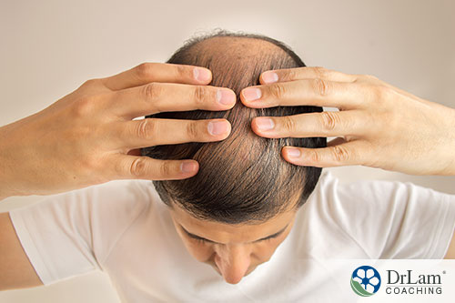 An image of a man with hair loss
