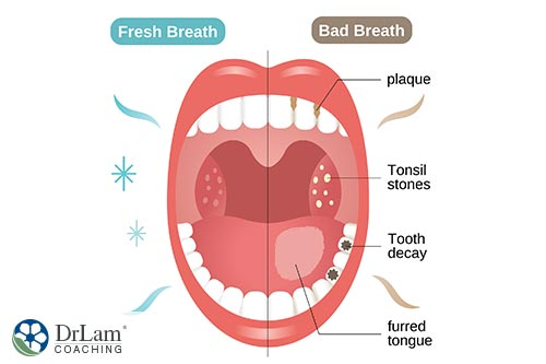 An image of a open mouth showing one side with good breath and one side having bad breath and all the causes