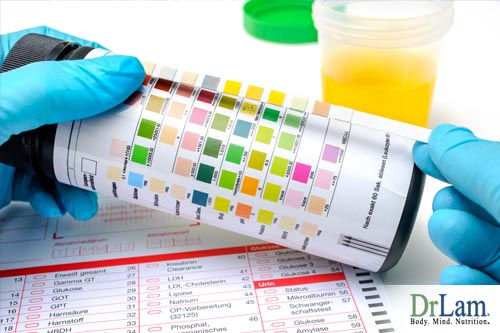 Urine test for adrenal insufficiency symptoms