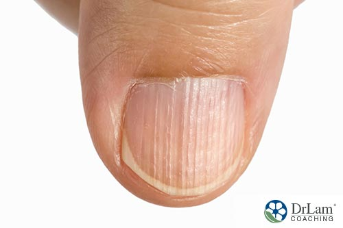 An image of vertical lines on a thumbnail